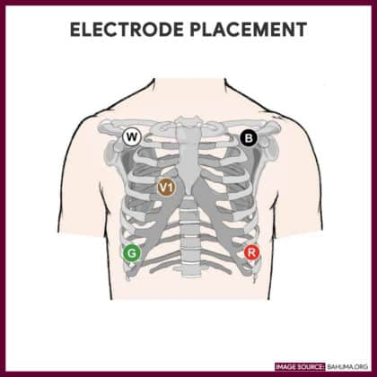 Electrode Placement-Holter