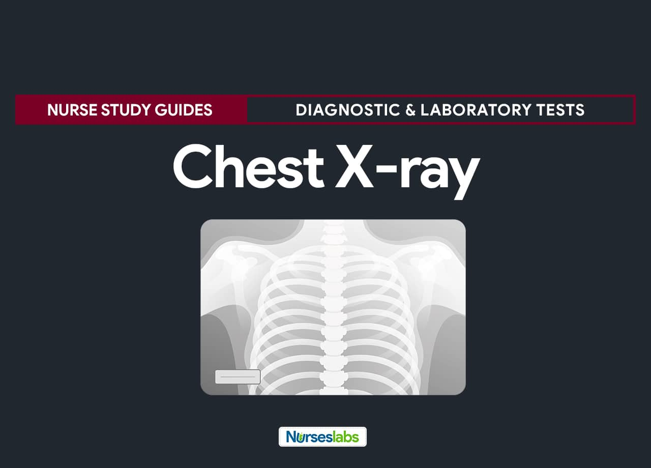 Chest X-ray (Chest Radiography) Nursing Care Management and Responsibilities