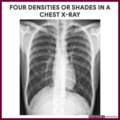 Four densities or shades in a chest x-ray