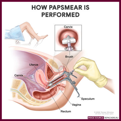 How Pap Smear is Performed - -Papsmear