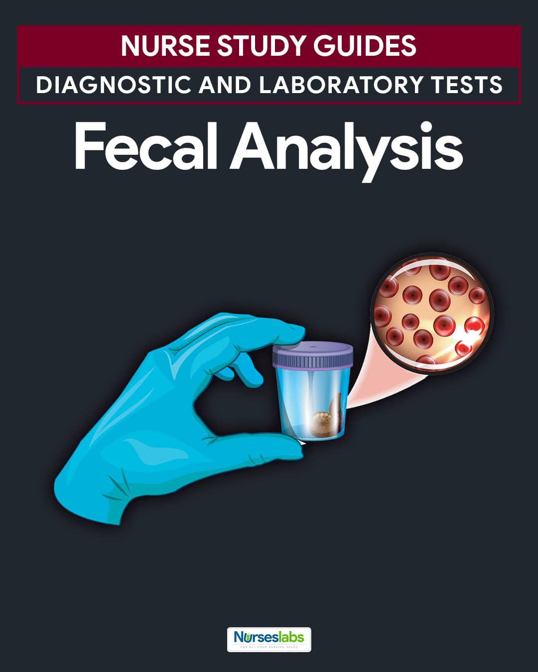 Fecal Analysis (Stool Analysis) Nursing Responsibilities
