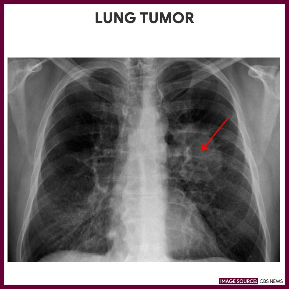 Lung Tumor-Chest-Xray