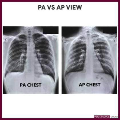 Difference between posteroanterior (PA) view and anteroposterior (AP) view