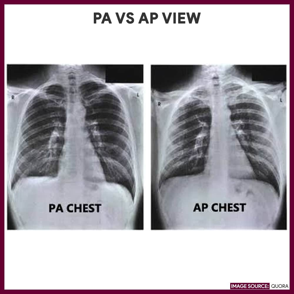 Chest X-ray (Chest Radiography) - Nursing Responsibilities