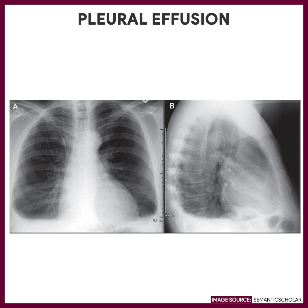 Pleural Effusion-Chest-Xray