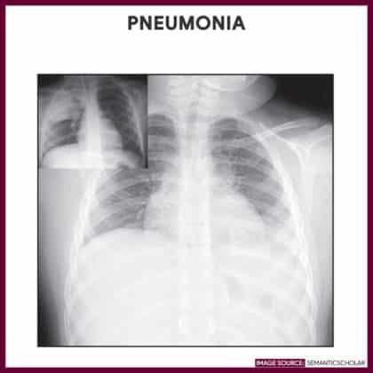 Pneumonia-Chest-Xray