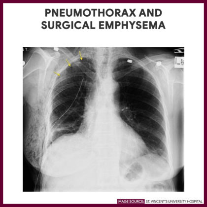 Pneumothorax and surgical emphysema-Chest-Xray