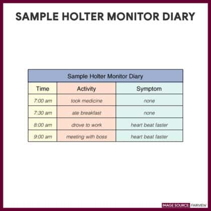 Sample Holter Monitor Diary