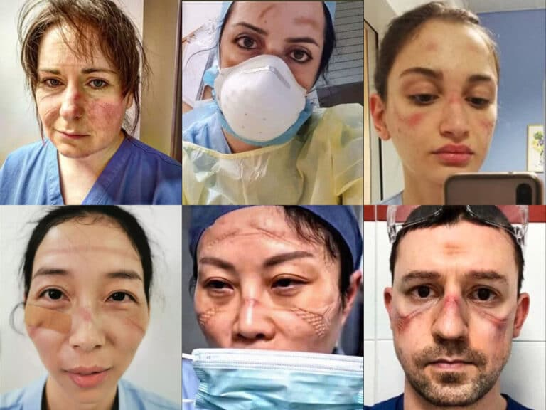 Healthcare workers fighting the COVID-19 showing their battlescars from prolonged PPE use.