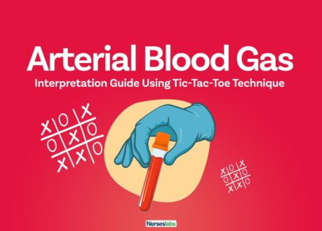 FT–Arterial Blood Gas Analysis Made Easy with Tic-Tac-Toe Method